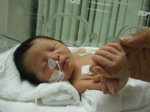小児乳幼児
