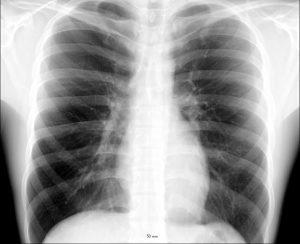 成人男性の胸部X線写真